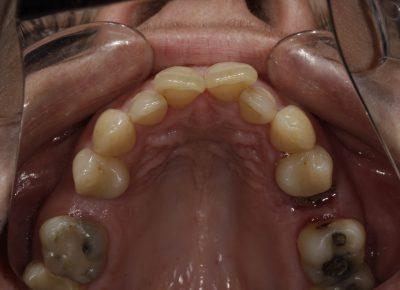 Antes ortodoncia maloclusiones