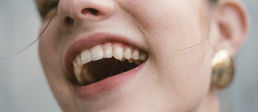 periodoncia en Clínica Frnández Abarca