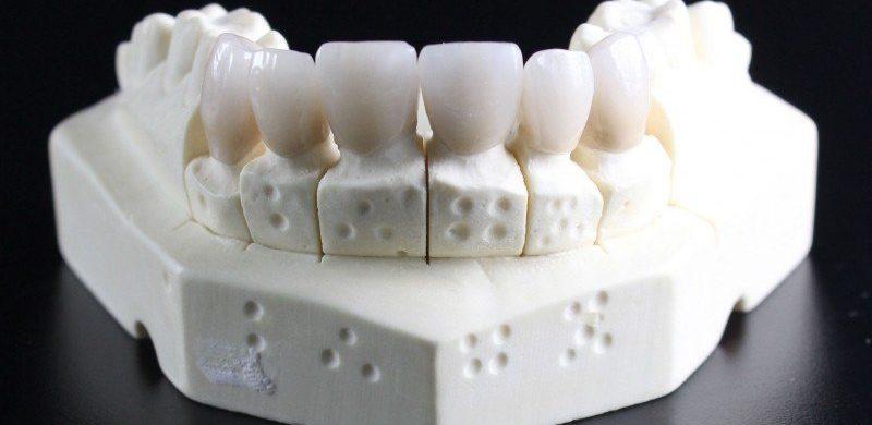 sintomas muela del juicio, dentista en motril